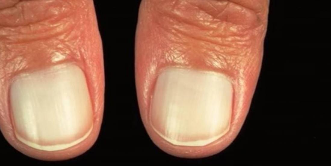 7 problèmes sur vos ongles sur lesquels vous devriez vous attarder