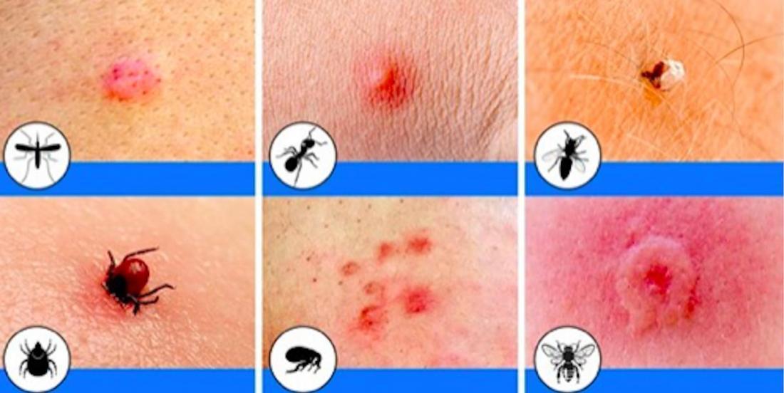 Voici 10 piqûres d'insectes que tout le monde devrait savoir identifier