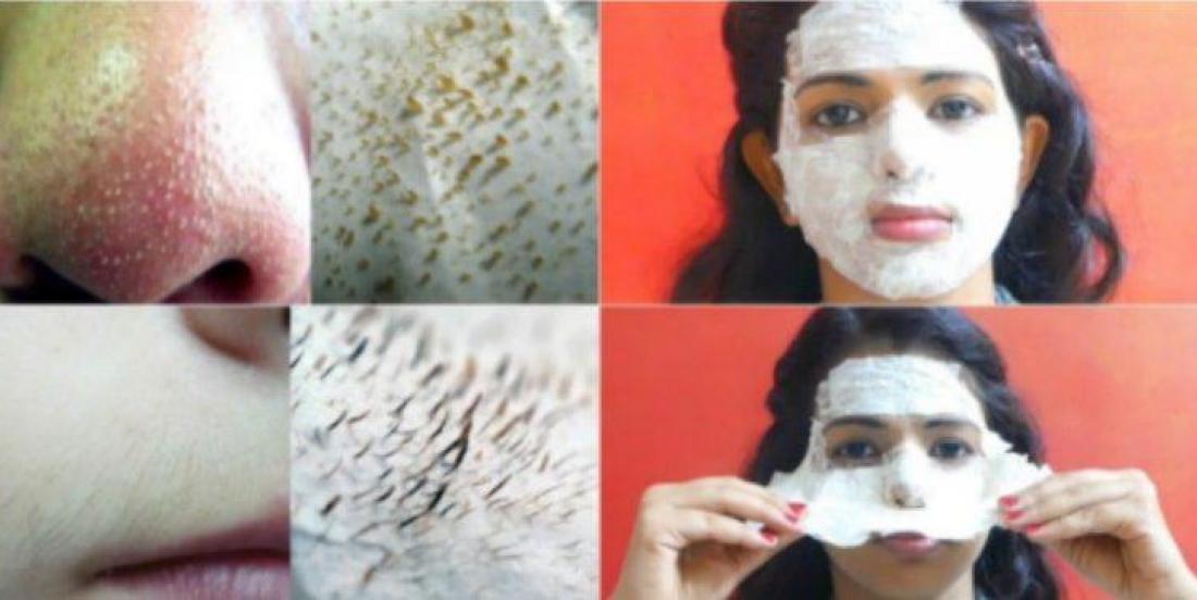 Ce masque entièrement naturel vous débarrassera à la fois des points noirs et des poils faciaux