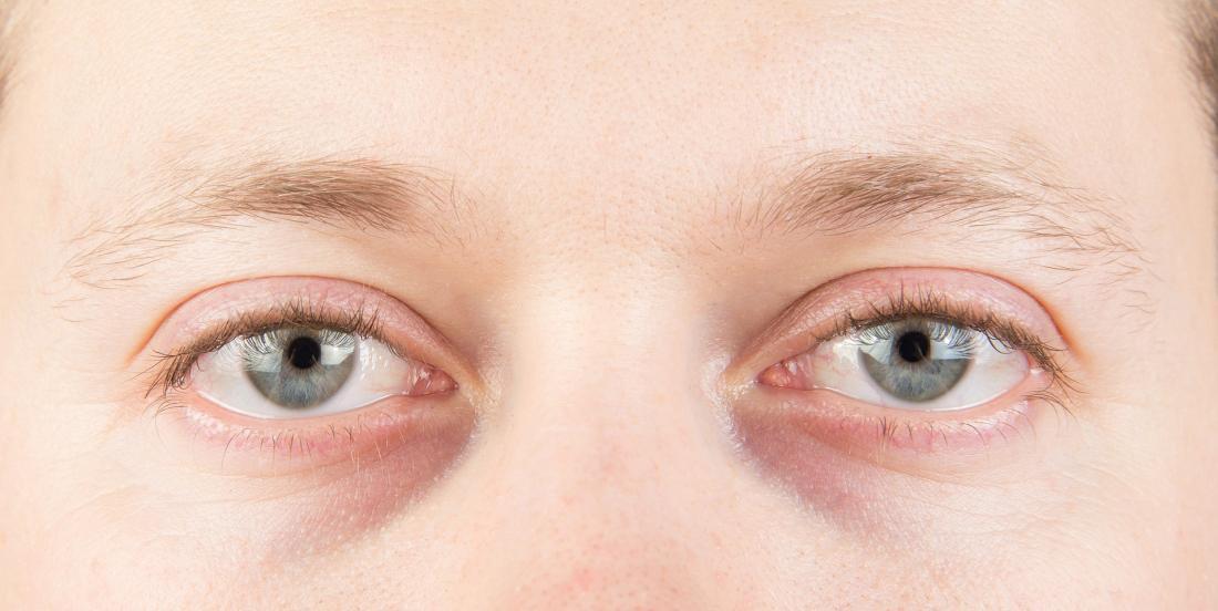 Les cernes sous les yeux ne sont pas toujours causés par un manque de sommeil...