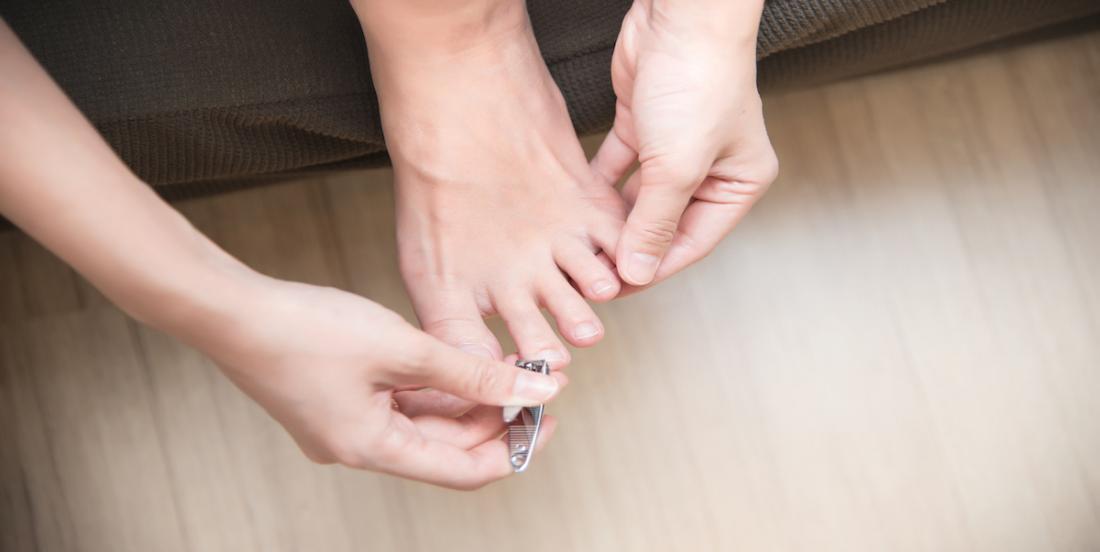 5 remèdes maison efficaces pour soigner un ongle incarné
