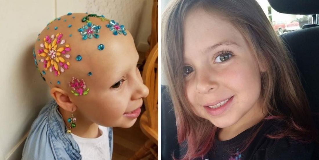 """Cette fillette souffrant d'alopécie donne ses """"astuces capillaires"""" pour les journées de coiffures folles à l'école"""