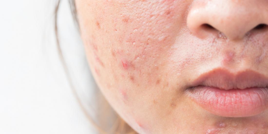 7 mythes sur l'acné auxquels vous devez cesser de croire!