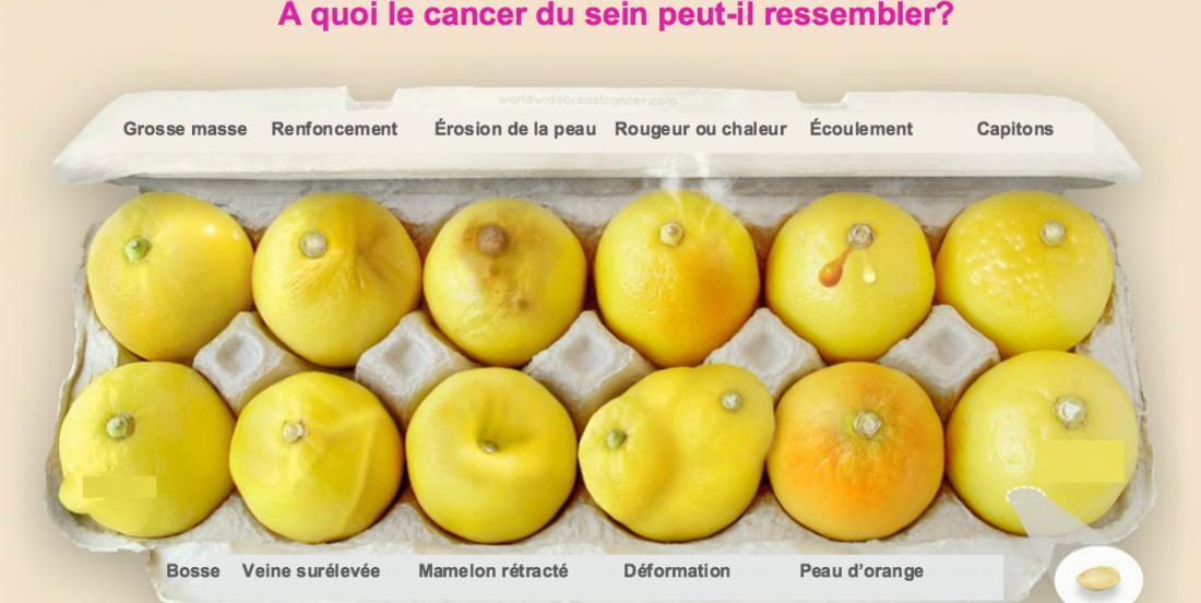 Ces citrons vous montrent 12 signes du cancer du sein qu'aucune femme ne devrait ignorer