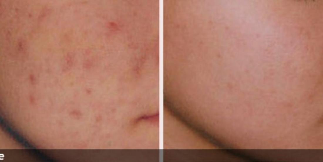 Les secrets d'une peau sans imperfection à l'aide d'ingrédients complètement naturels !