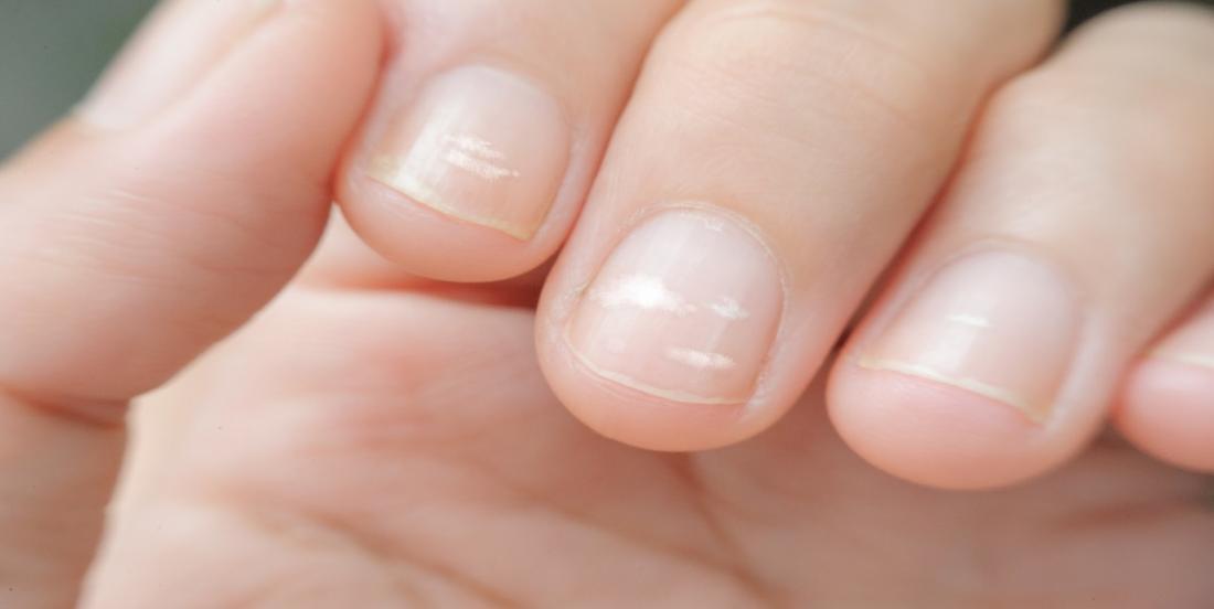 Vos ongles cassent ou dédoublent constamment? Voici ce que votre corps essaie de vous dire!